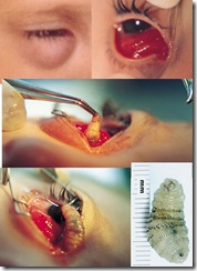 eyeworm